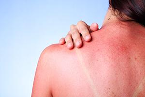 Arsuri solare - cauze și tipuri